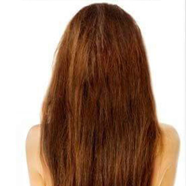 hair-lose-before