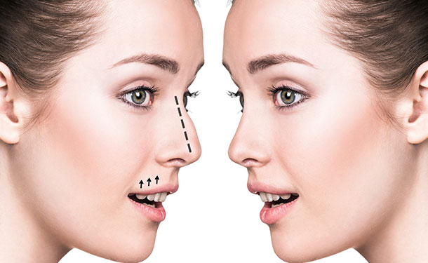 nose reshaping treatment in Ilford