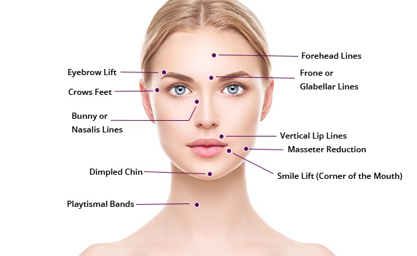 anti wrinkle injection treatment Ilford