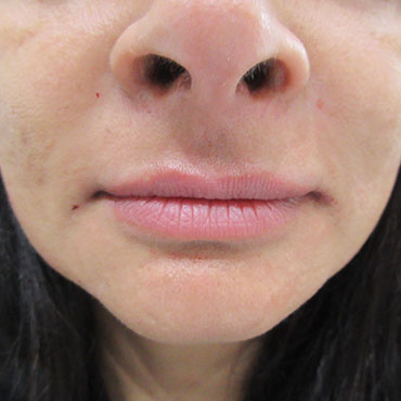 after lip enhancement treatment
